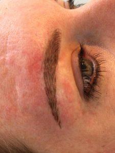 correctie litteken opvullen na