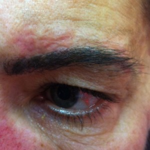 litteken opvullen met permanente make-up