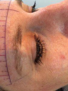 correctie litteken opvullen voor